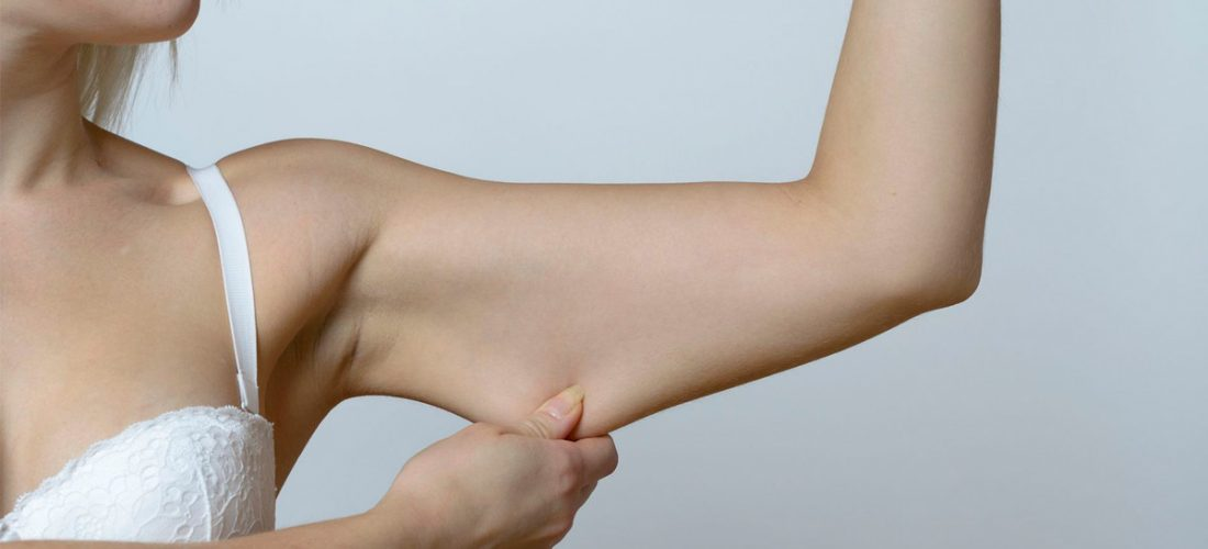 Skinny Fat ili tijelo bez snage